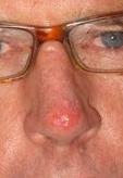 biopsia nosa